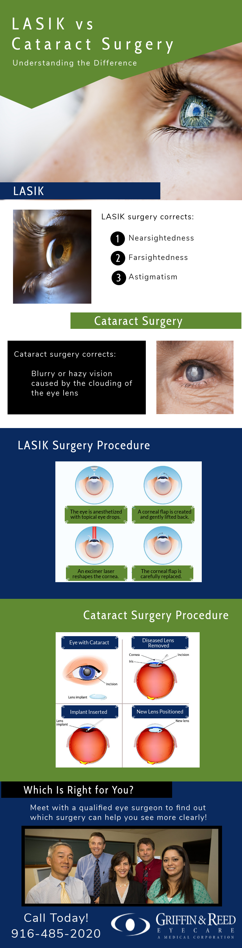 LASIK vs Cataract Surgery